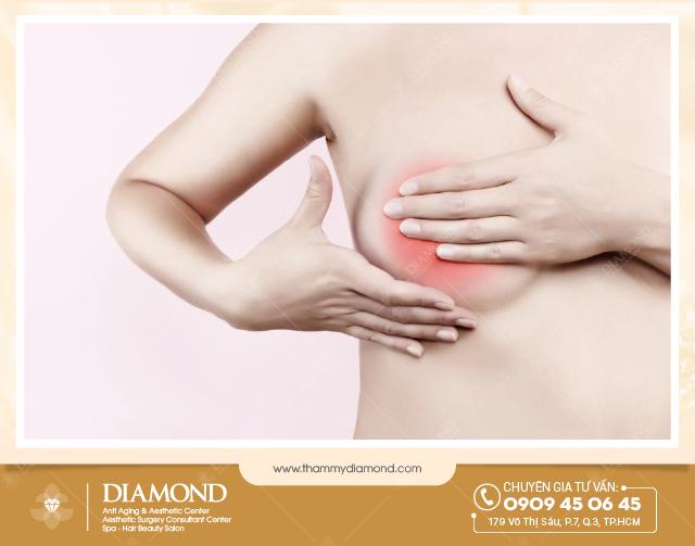 Ngực viêm loét xạ hóa do xăm hồng nhũ hoa