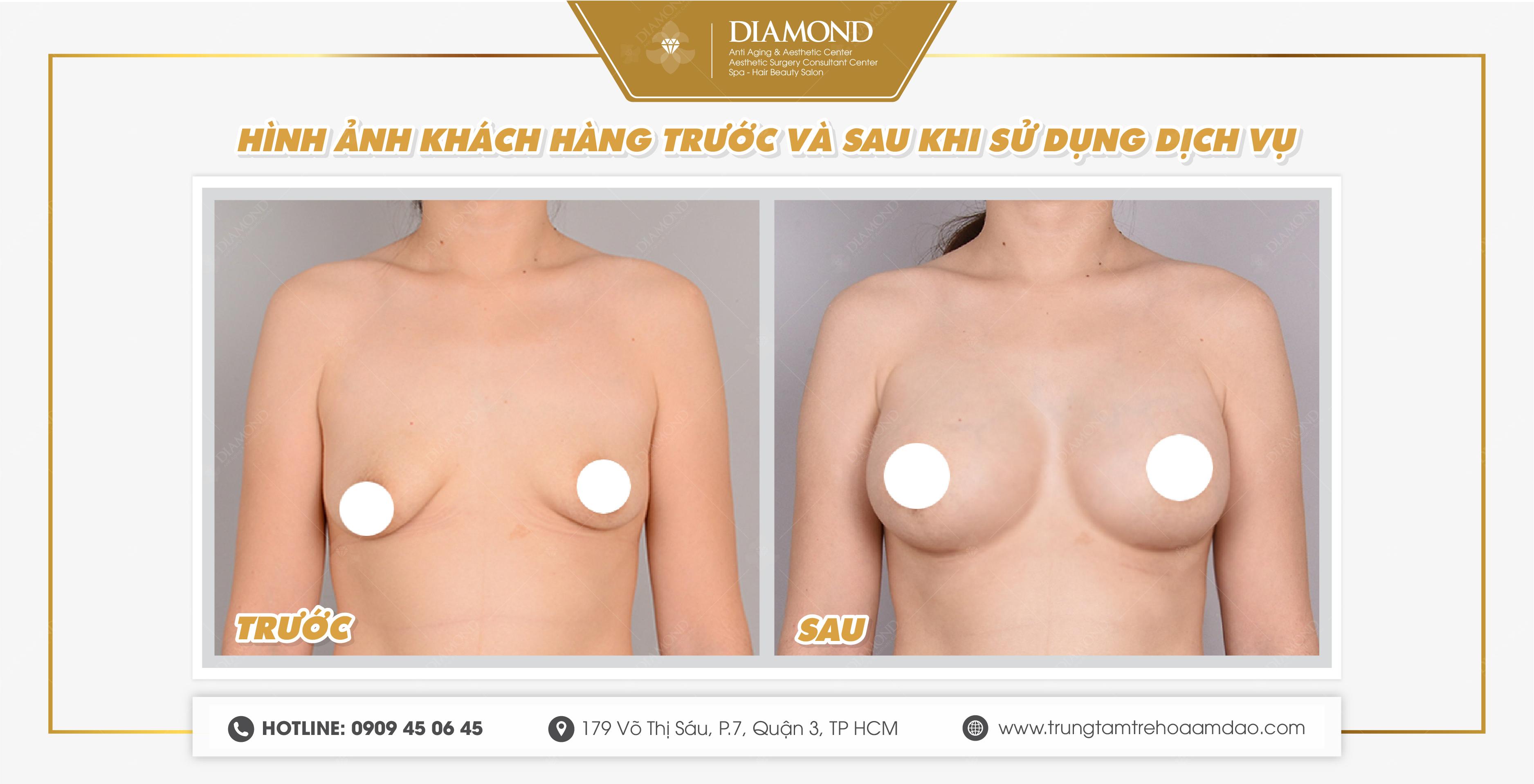 Hình ảnh trước và sau khi thẩm mỹ ngực