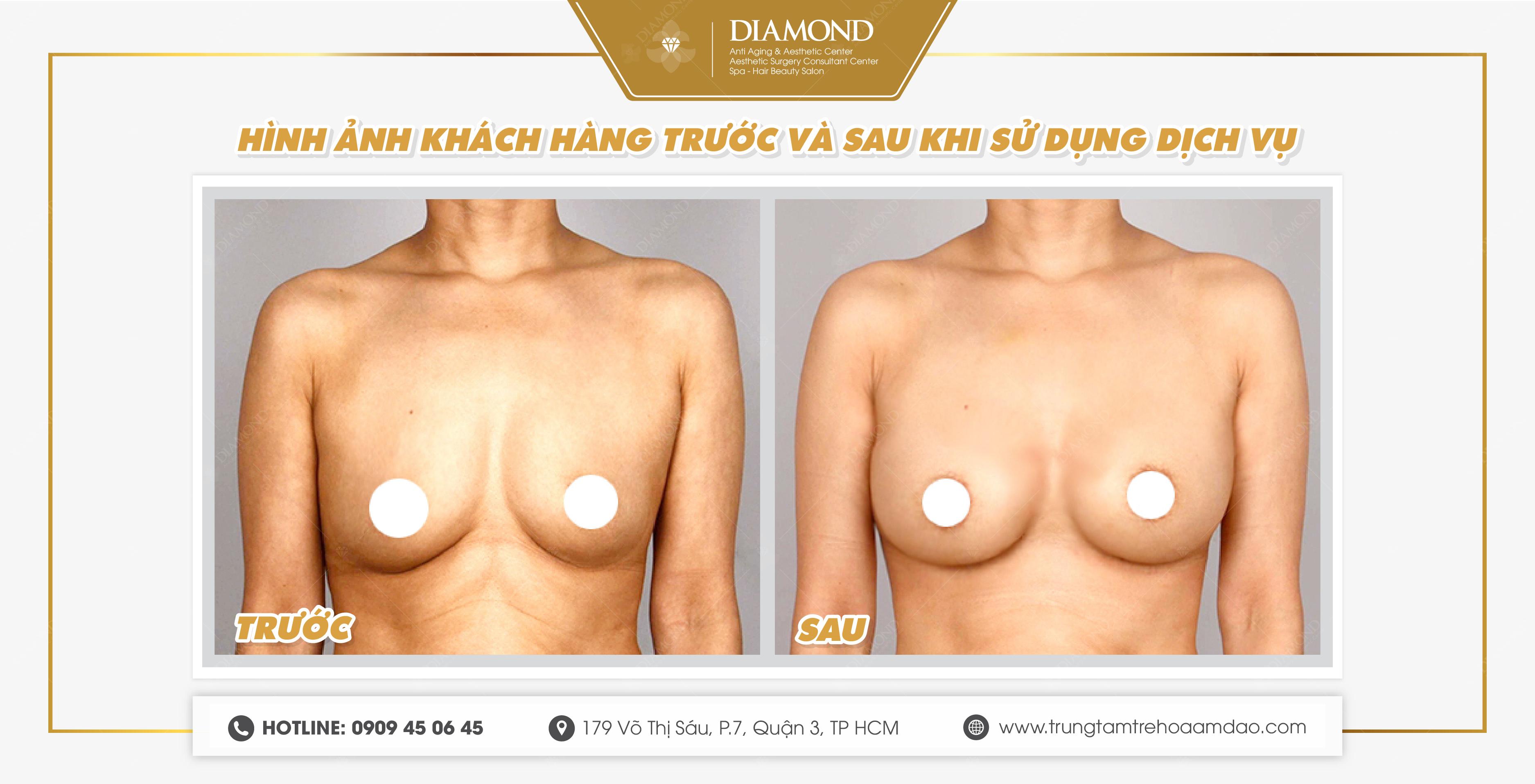 Hình ảnh trước và sau khi phẫu thuật treo vú