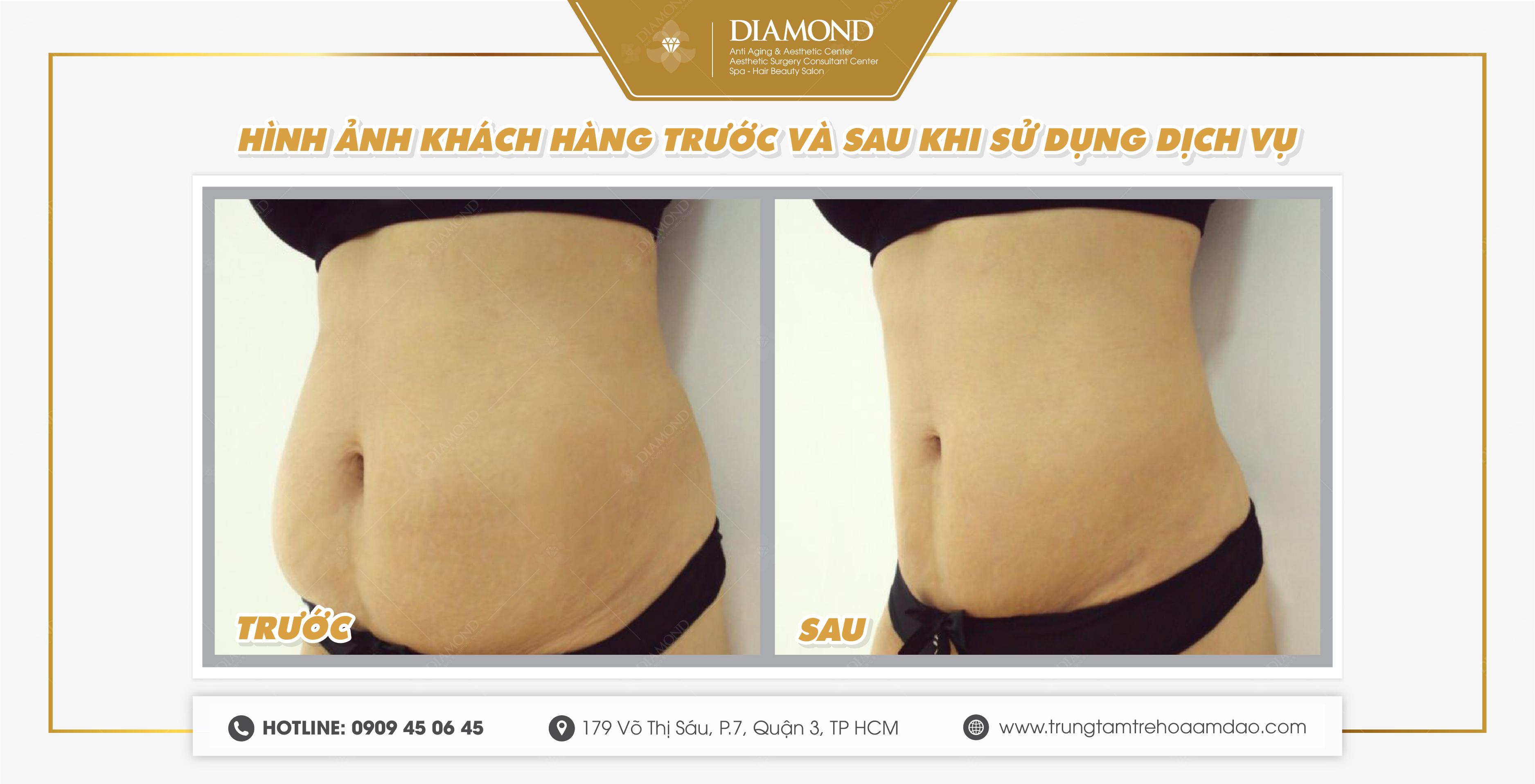 Kết quả trước và sau khi giảm mỡ bụng
