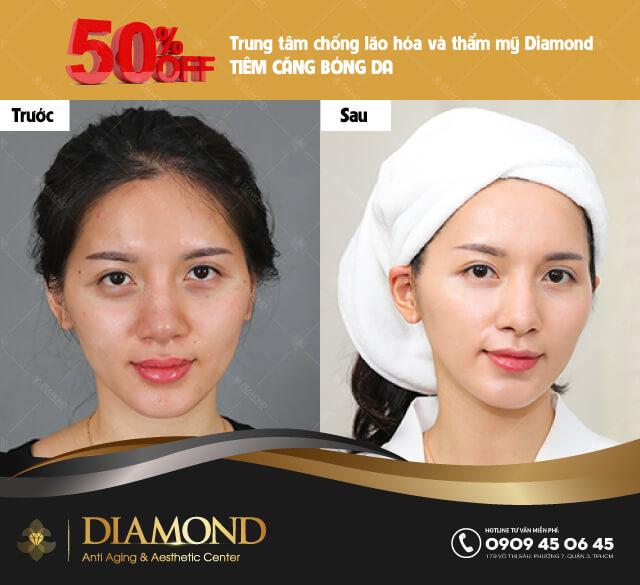 Trước và sau khi căng bóng da