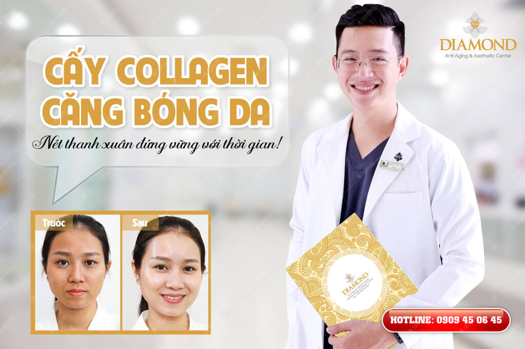 Cấy Collagen căng bóng da