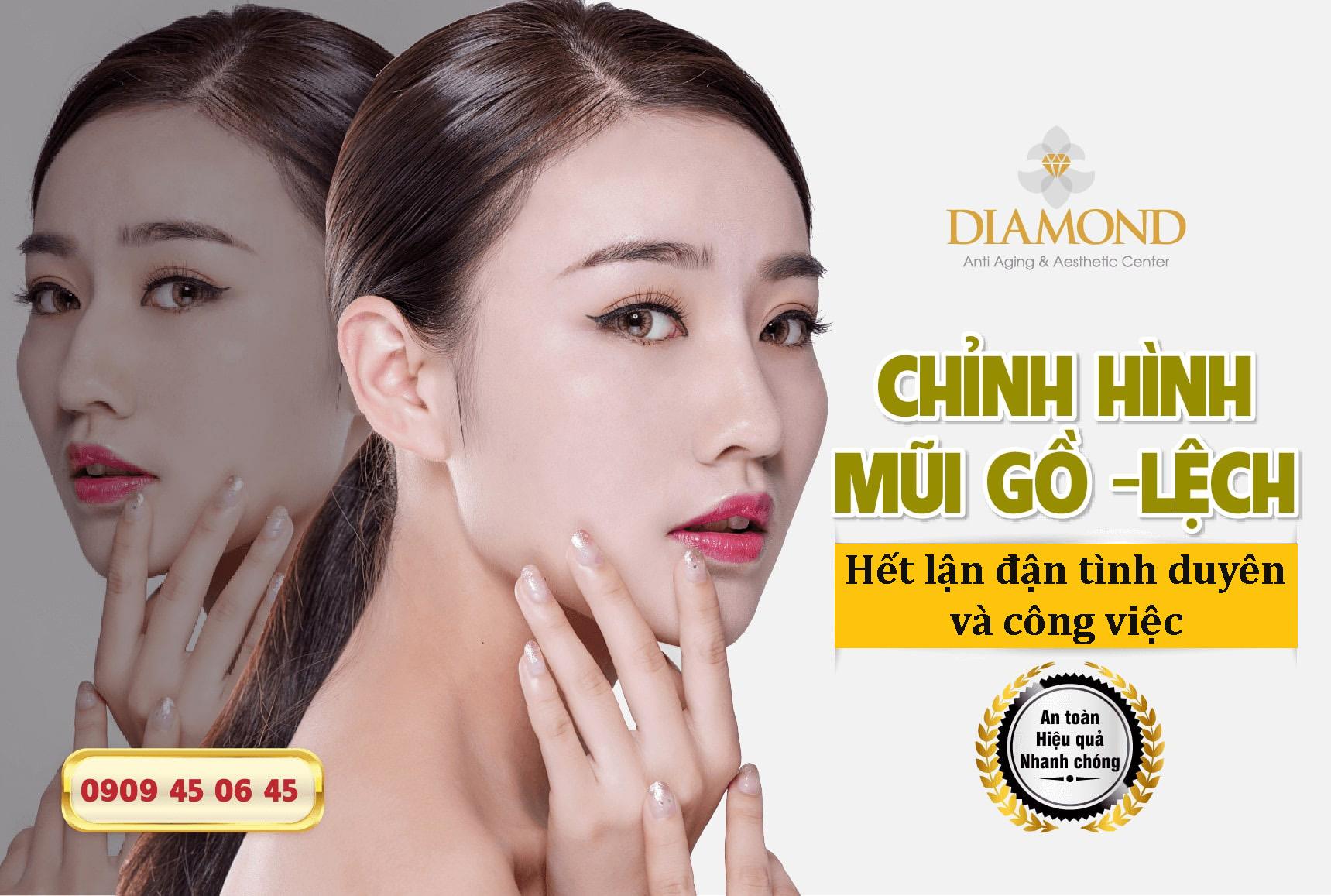 chinh-sua-mui-go-het-lan-dan-tinh-duỵen