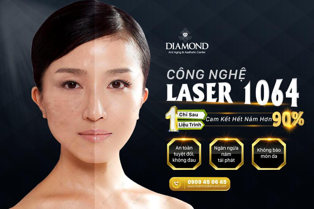Công nghệ Laser 1064 điều trị nám hết hơn 90%
