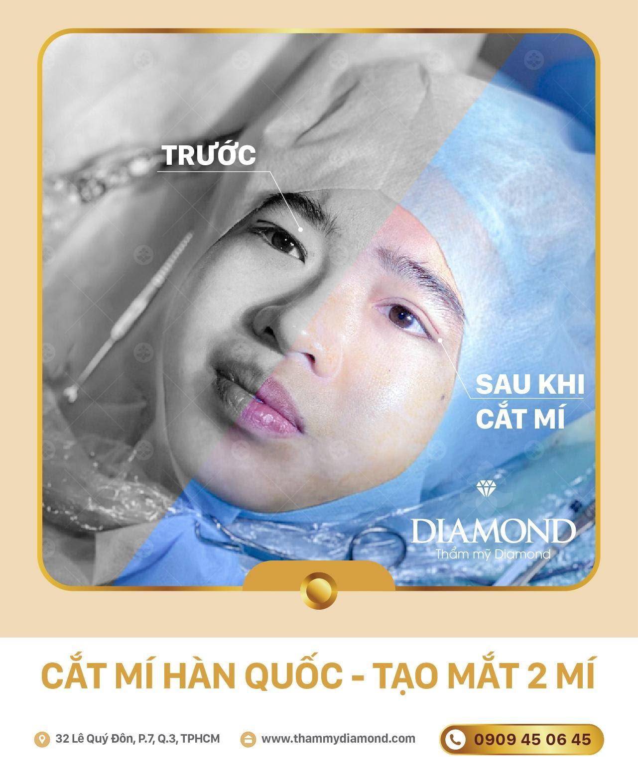 hieu-qua-cat-mi-mat-nang-cung-may-diamond