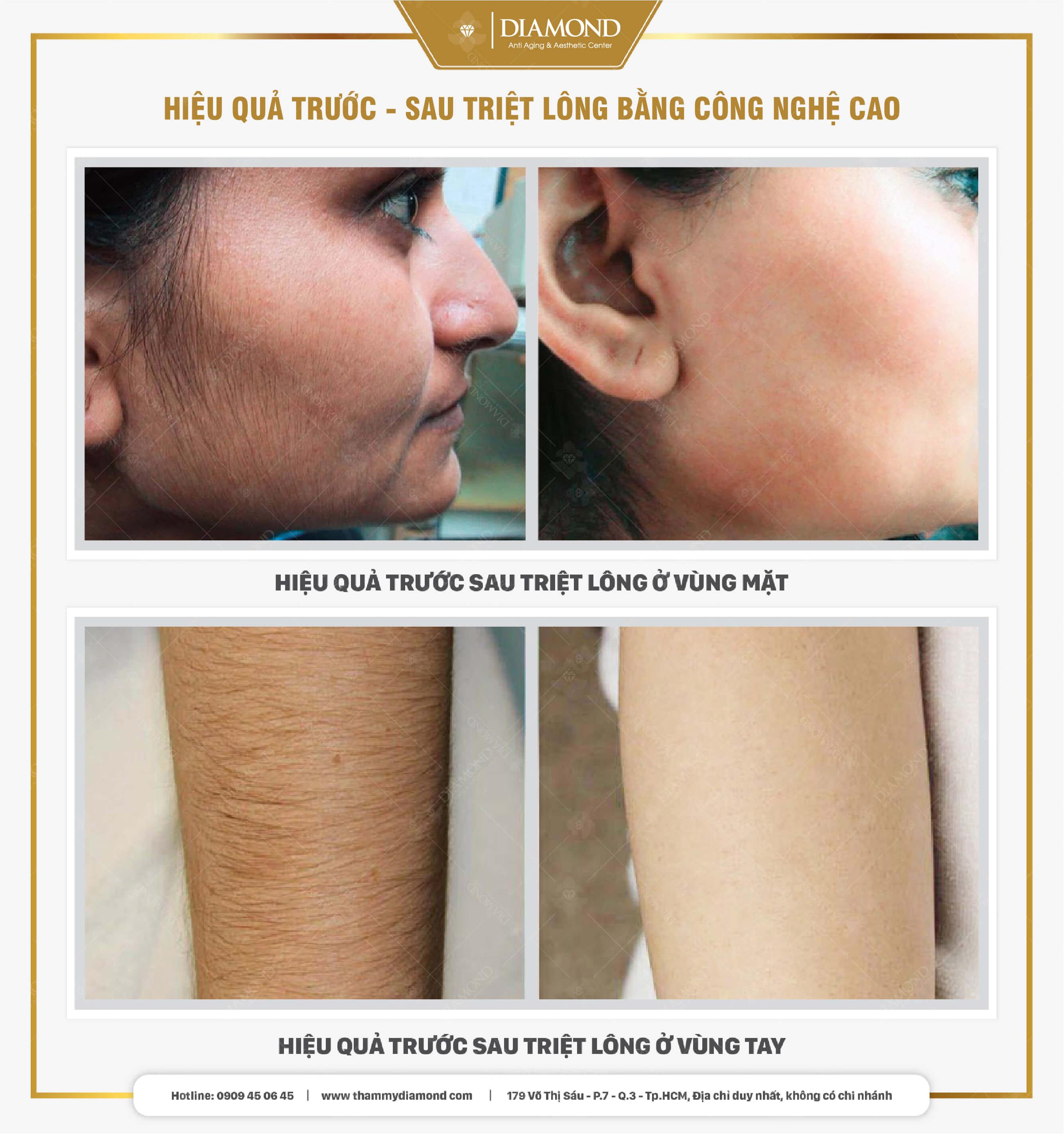 Hiệu quả triệt lông bằng công nghệ cao mặt, nách