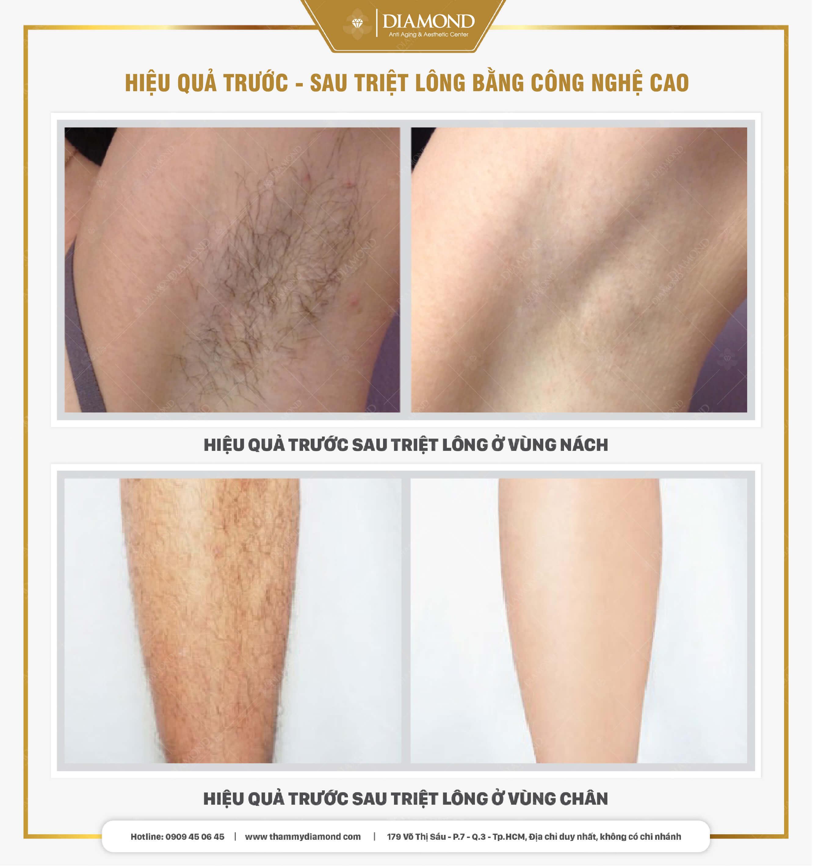 Hiệu quả trước sau triệt lông công nghệ cao chân vs nách