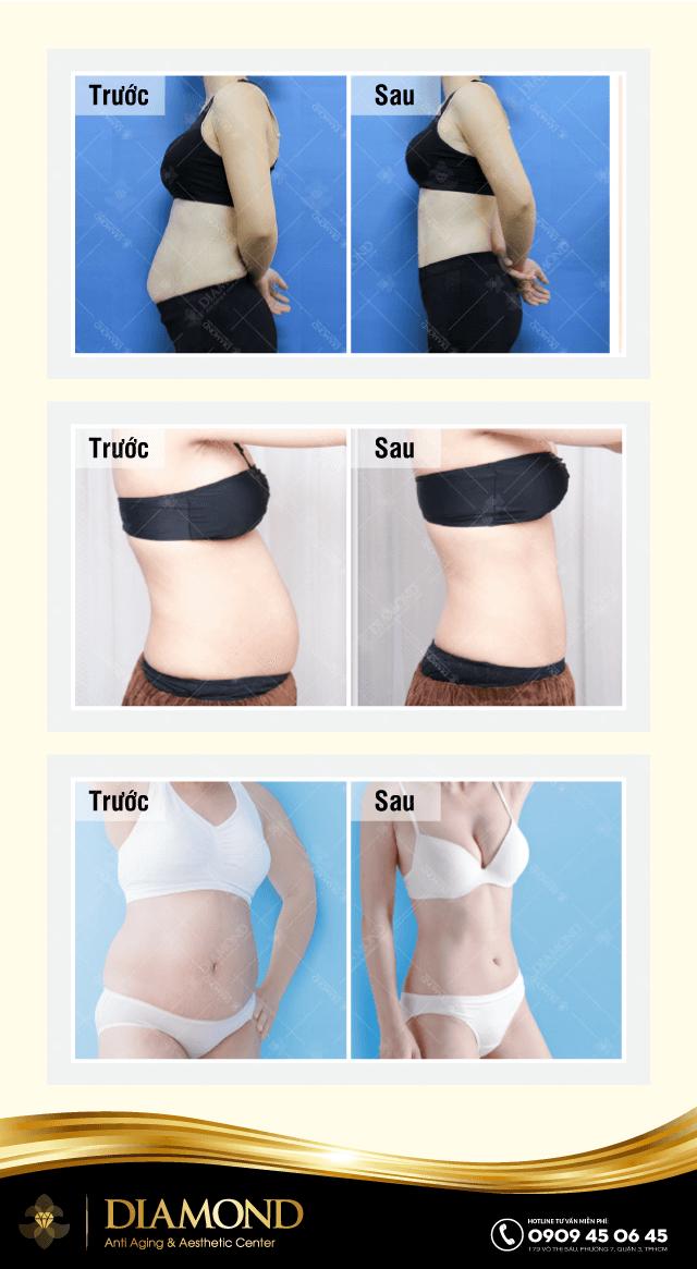 Hiệu quả giảm mỡ lipoultrasonix