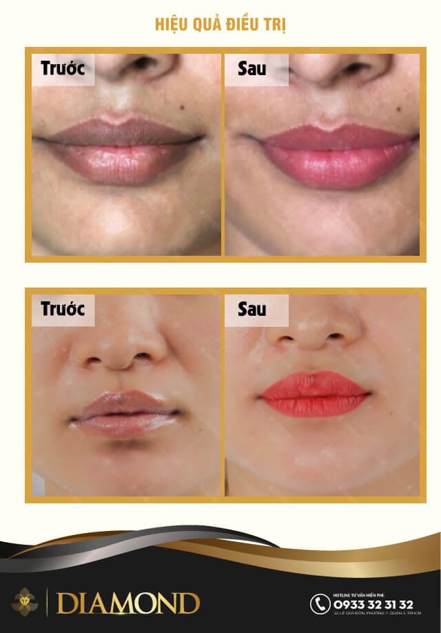 Khử thâm môi nữ