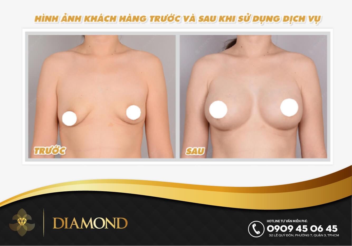 Hiệu quả nâng ngực thẩm mỹ sau sinh