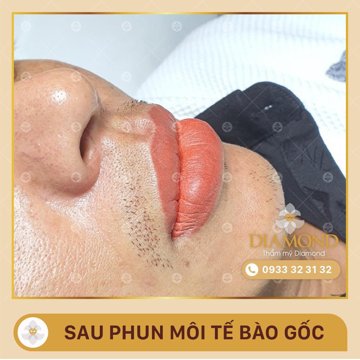 Hiệu quả phun môi
