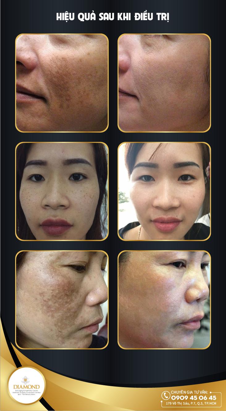 Hiệu quả sau khi điều trị bằng công nghệ Laser C6