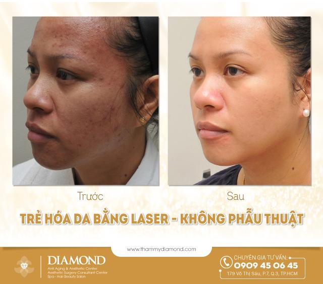 Trẻ hóa da bằng laser, không phẫu thuật