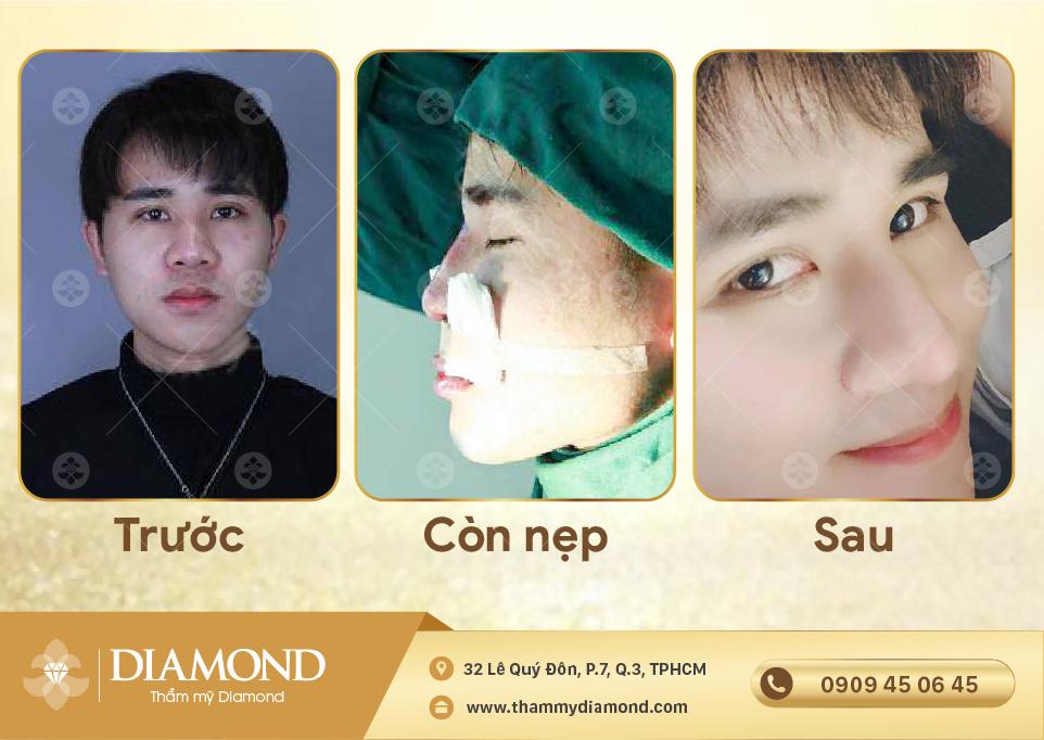 khách hàng nâng mũi cấu trúc sụn sườn tự thân diamond