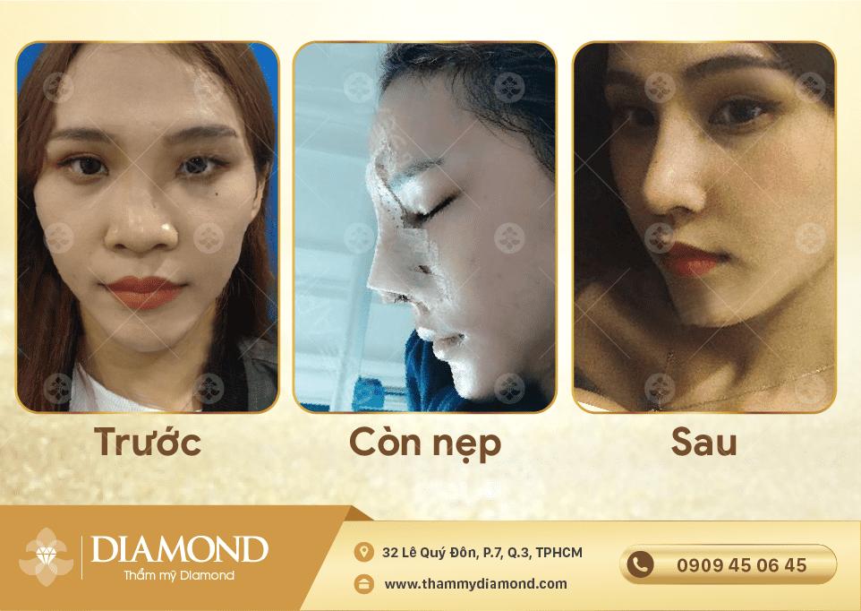 HÌNH ẢNH TRƯỚC SAU KHI THU GỌN CÁNH MŨI TẠI THẨM MỸ DIAMOND