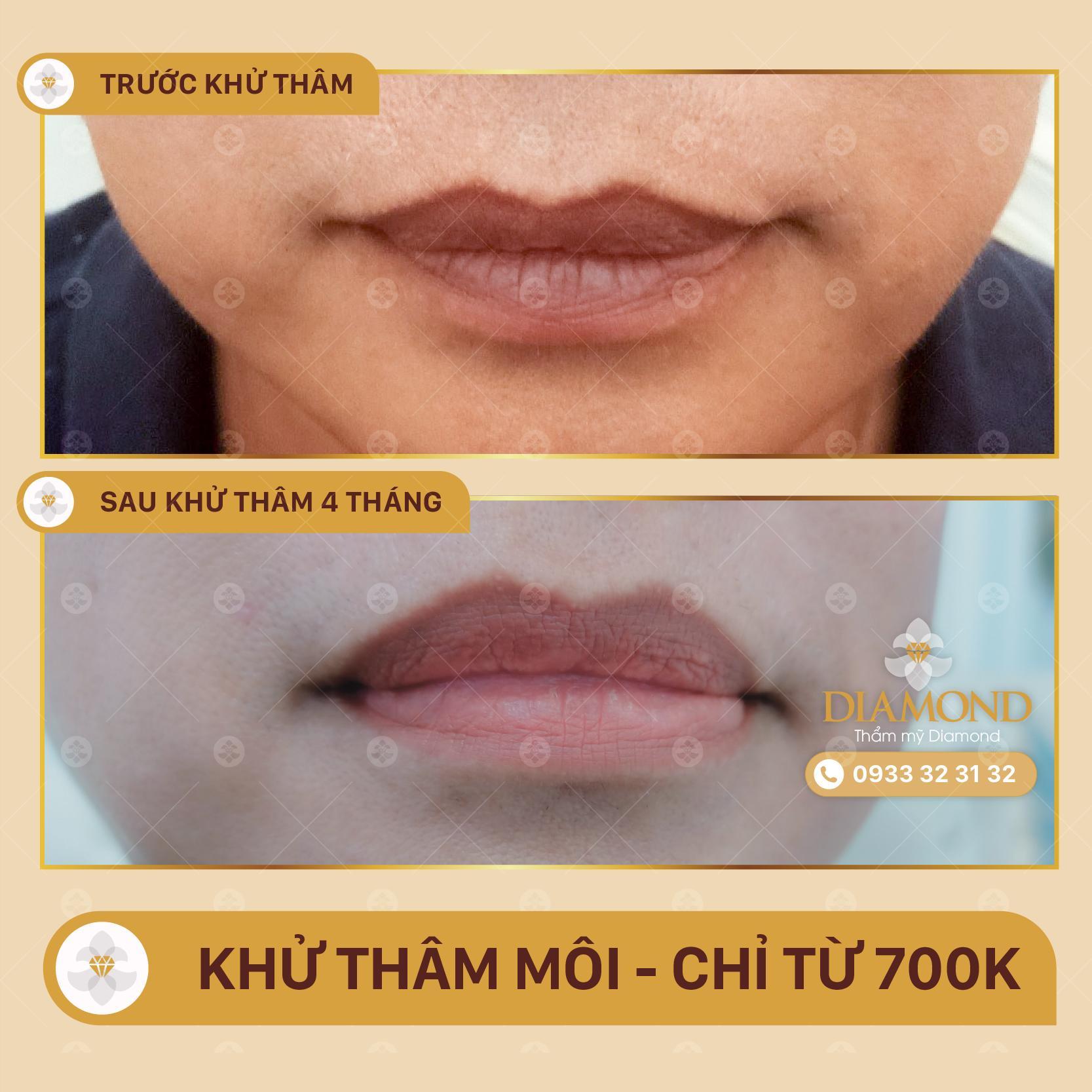 Khử thâm môi