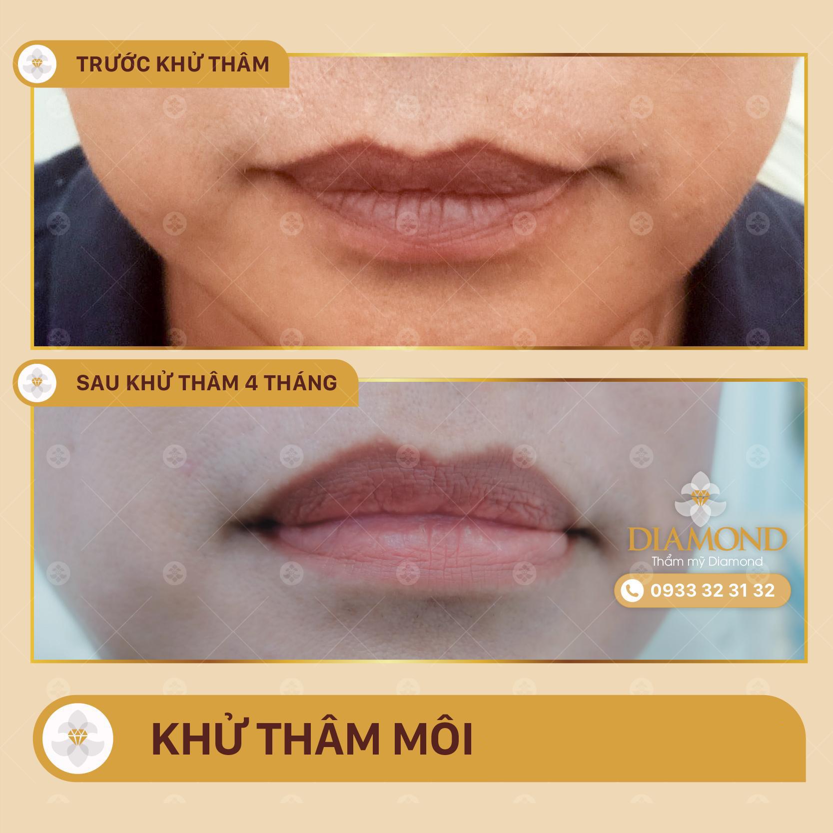Khử thâm môi nam nữ
