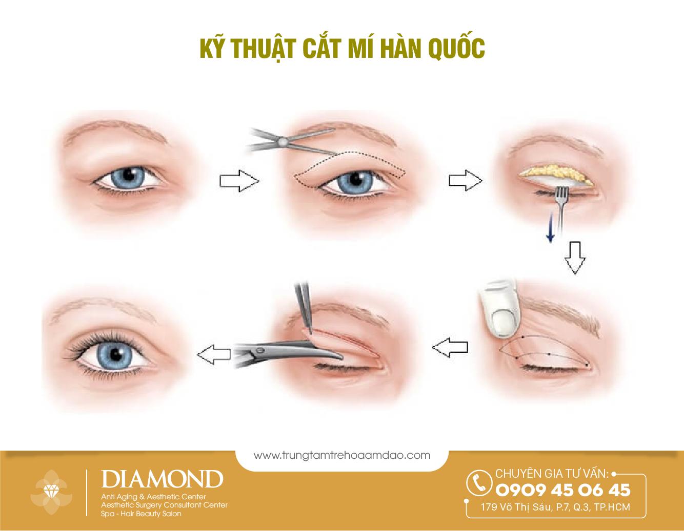 mo-phong-ki-thuat-cat-mi-han-quoc-diamond