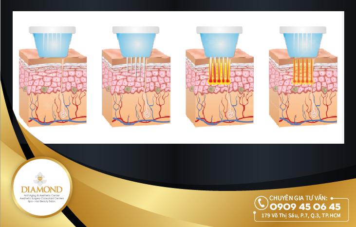Mô phỏng quá trình tác động của công nghệ thermage kim