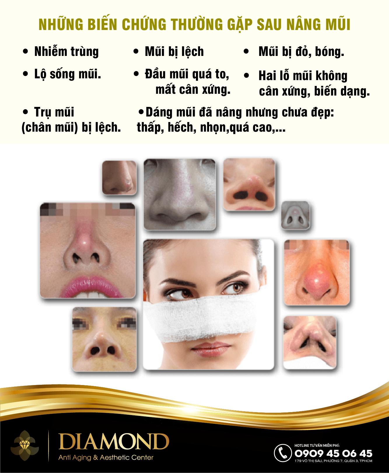 Những biến chứng thường gặp sau nâng mũi