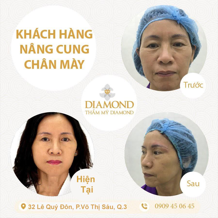 phuong-phap-nang-cung-may-diamond