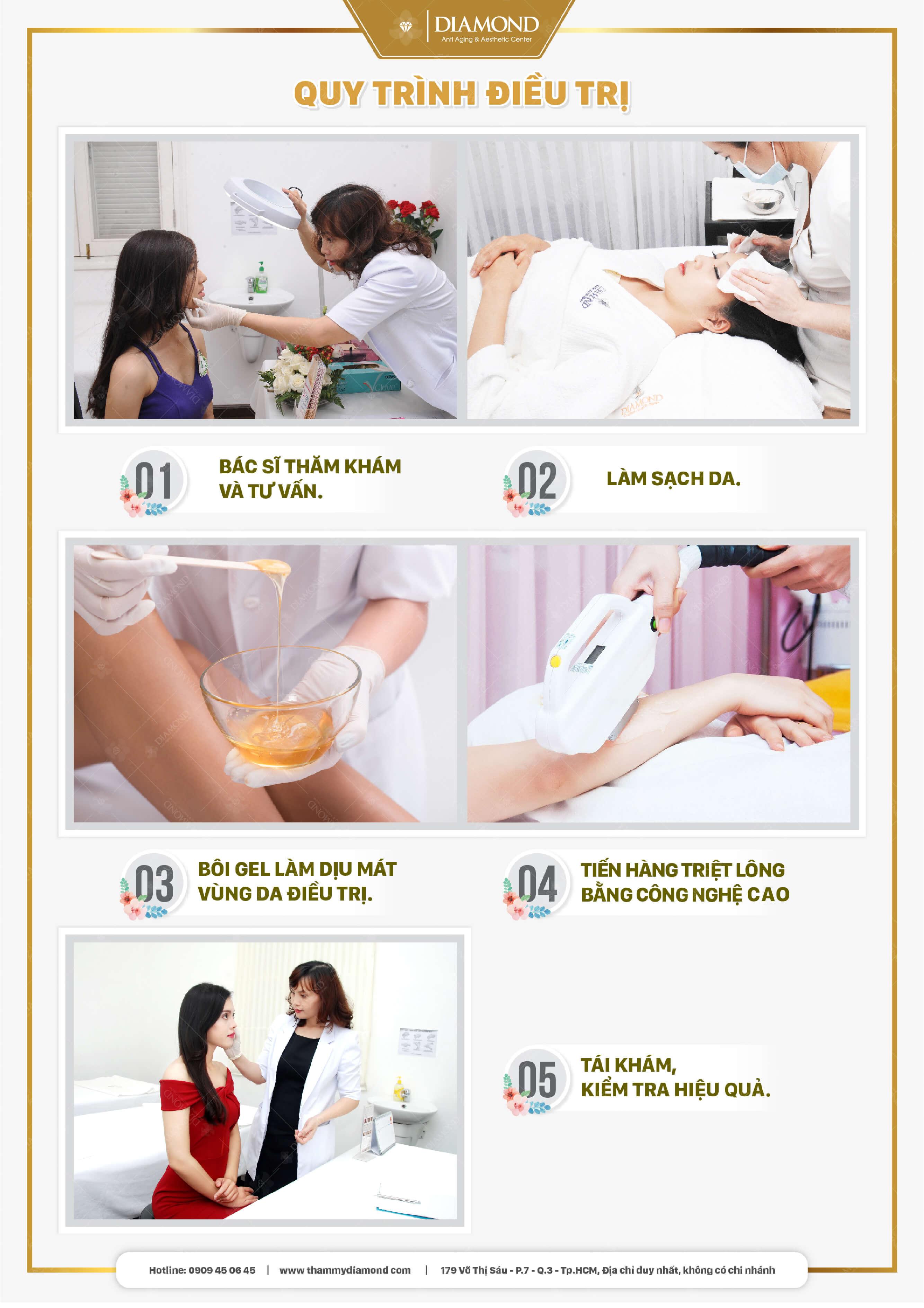 Quy trình điều trị triệt lông công nghệ cao