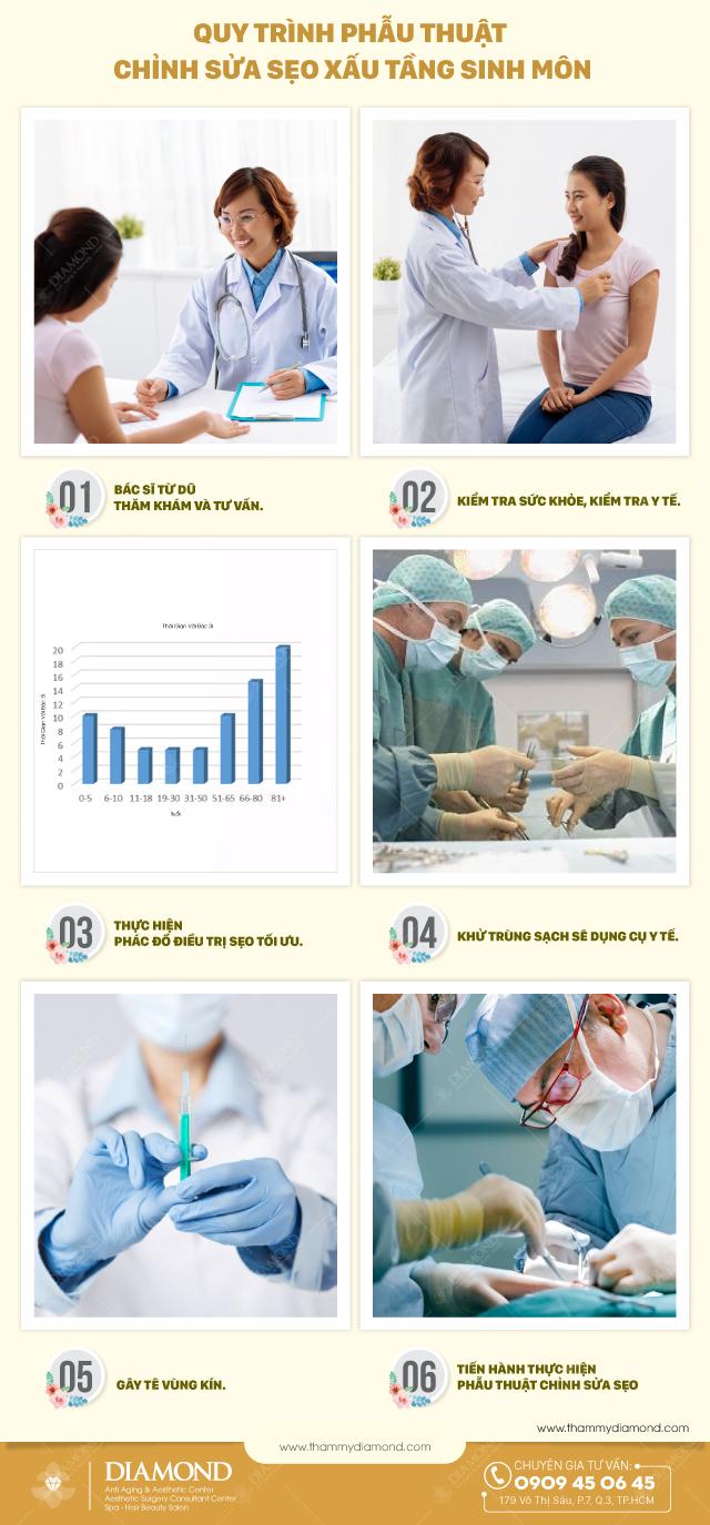 Quy trình phẫu thuật chỉnh sửa sẹo xấu tầng sinh môn