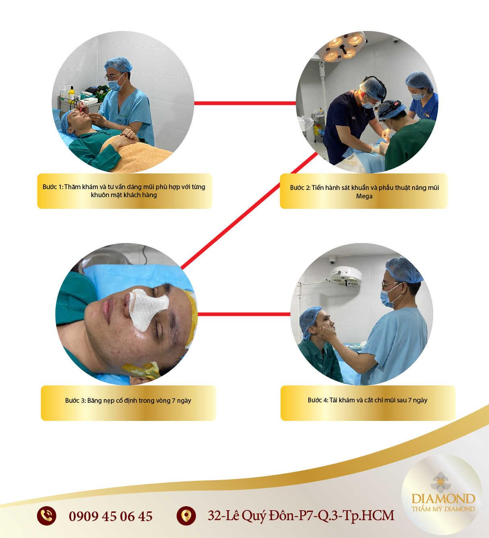 quy trình nâng mũi mega chuẩn y khoa diamond