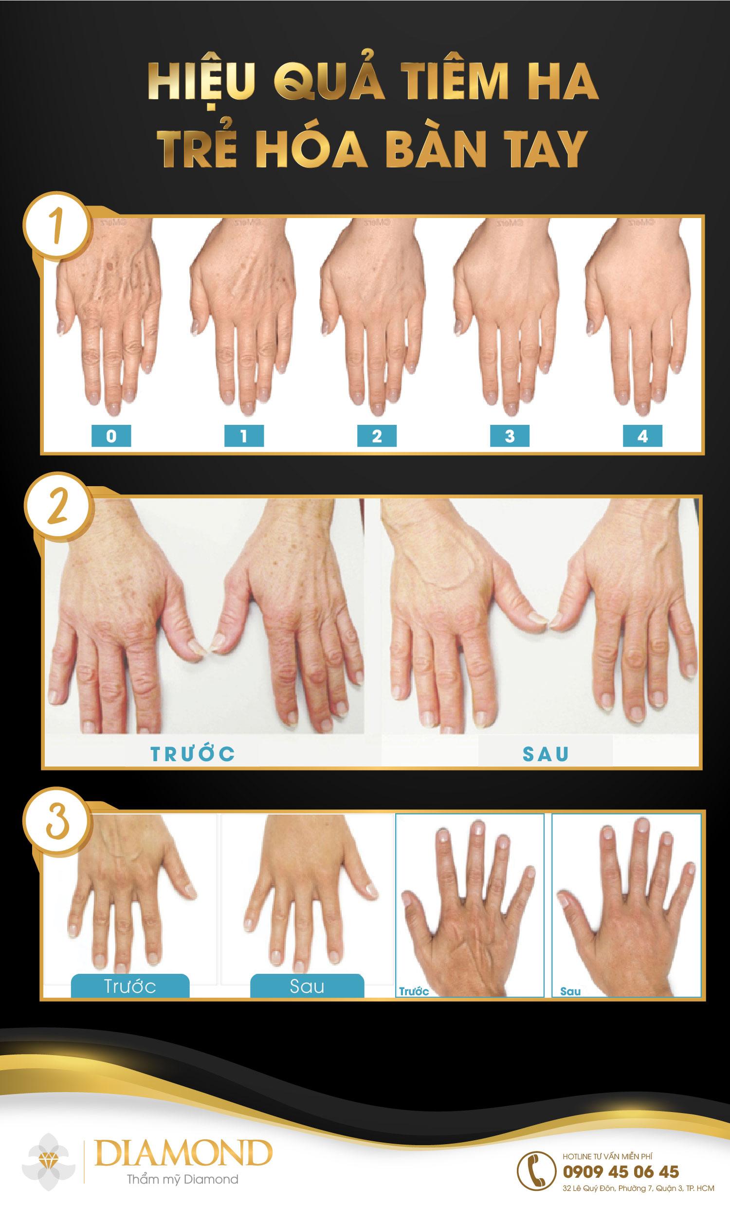Tiêm HA collagen trẻ hóa da tay