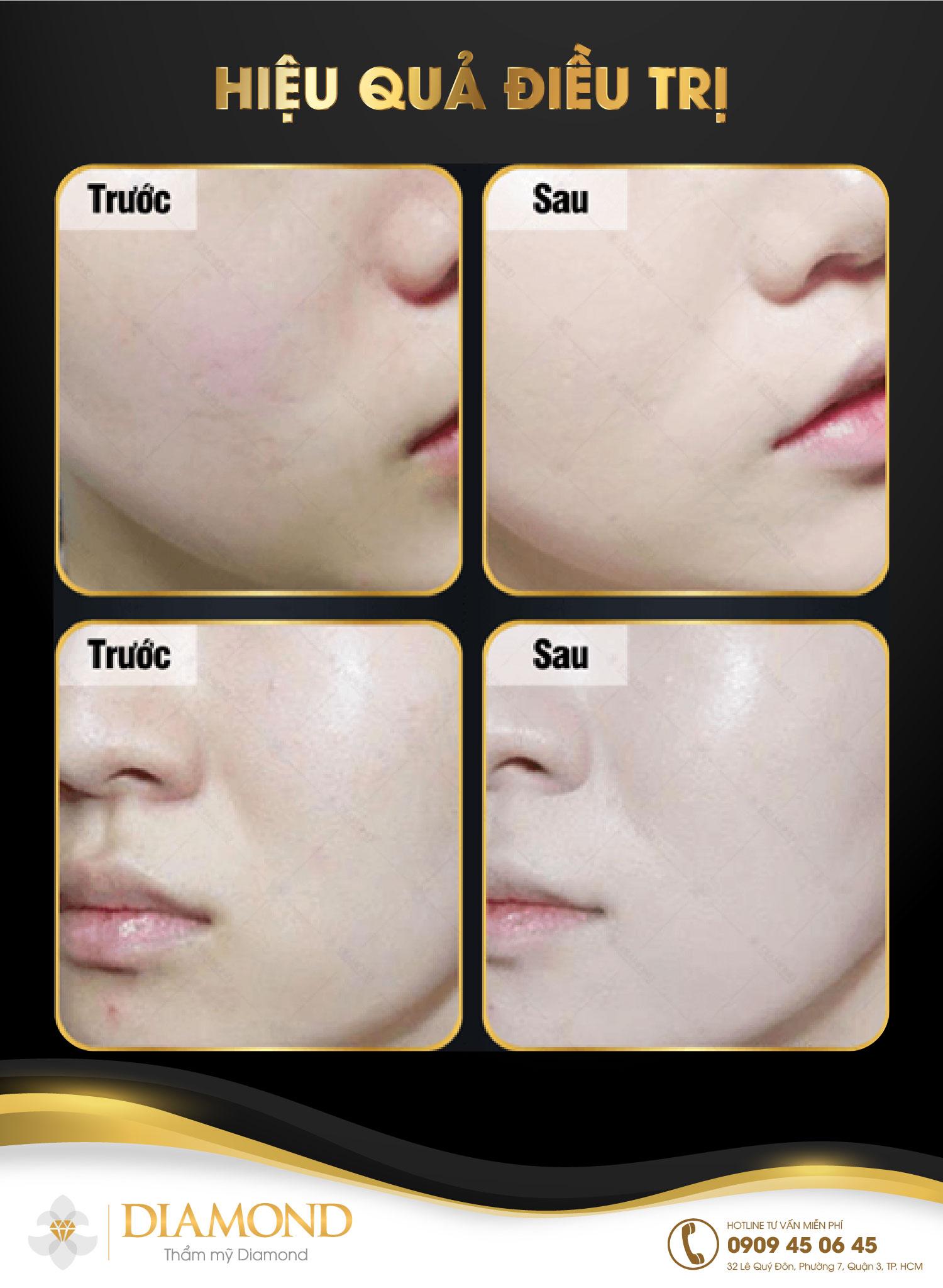 Tiêm HA collagen trẻ hóa da mặt, bàn tay