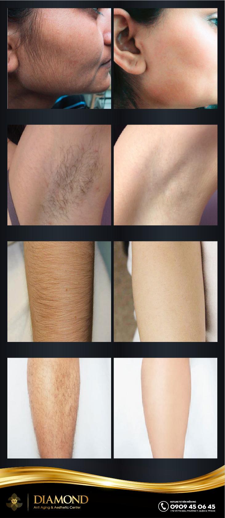 Hiệu quả triệt lông trên các vùng của cơ thể